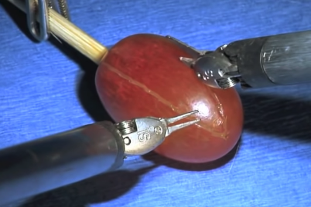 They Did Surgery On A Grape